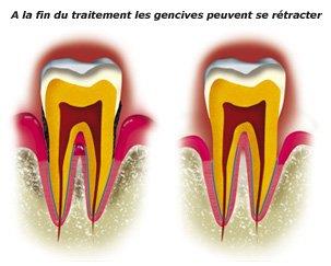 gencives-retractees-1-a