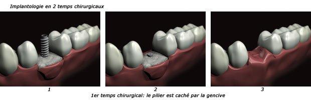 implantologie-2t1-c