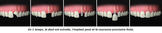 dent-cassee_prothese_dentiste