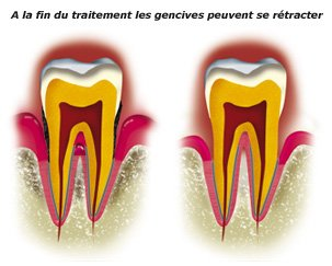 gencives-retractees-1-a