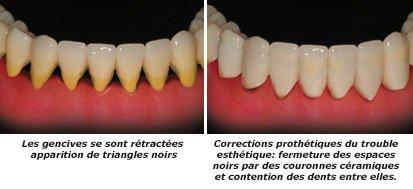 gencives-retractees-2-c