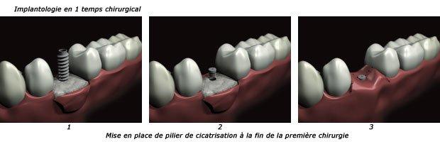 implantologie-1t-c