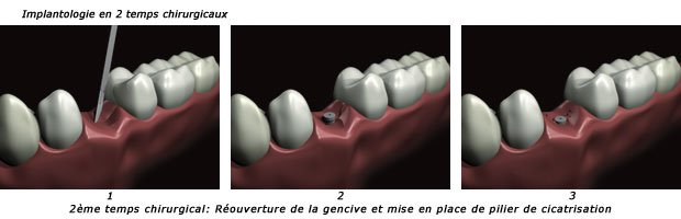 implantologie-2t2-c2