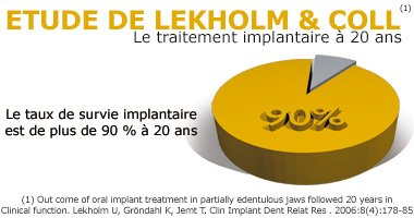 Implant dentaire Nice - Taux de survie implantaire