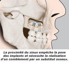 sinus-profil_cabinet_dentaire