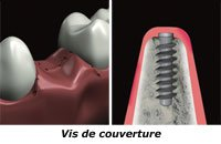 vis-couverture-pilier_implant_dentaire nice