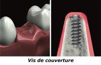 vis-couverture-pilier_implant_dentaire nice