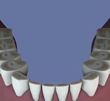 Bruxisme-et-usure-dentaire
