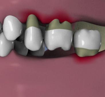 Consequence-de-la-perte-des-dents-posterieures
