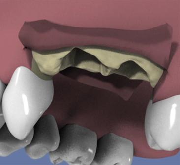 Extraction-et-comblement-osseux