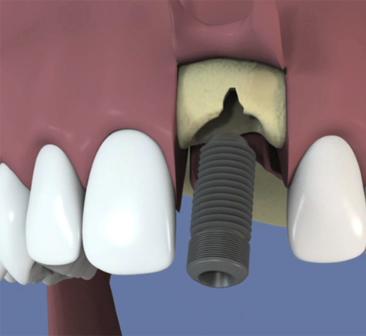 Extraction-implantation-et-mise-en-esthetique-immediate
