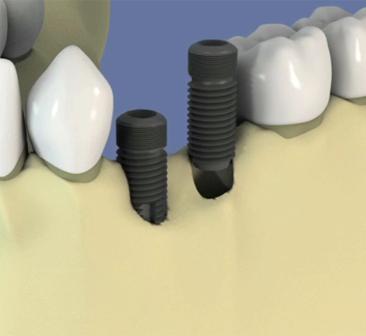 Implant-et-regeneration-osseuse