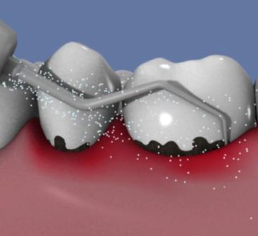 Laser-et-traitement-de-la-parodontite