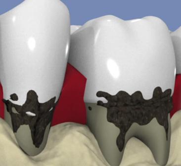 Le-traitement-chirurgical-de-la-parodontite