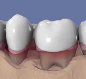 Lithotritie-parodontale