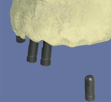 Maxillaire-complet-et-traitement-implantaire-pour-un-bridge-fixe-visse