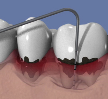 Parodontite-et-formation-de-la-poche-parodontale