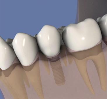 Pose-d'un-implant-simple