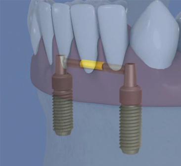 Stabilisation-d-une-prothe-par-une-barre-sur-2-implants