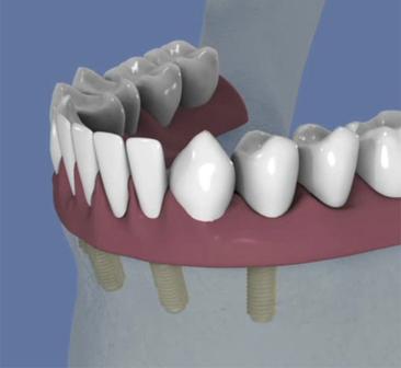 Stabilisation-d-une-prothese-par-une-barre-sur-4-implants