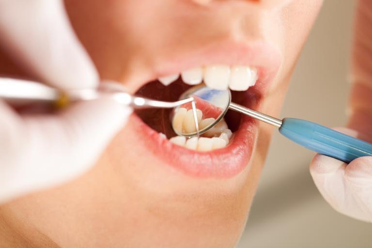 parodontite_dentiste_nice_birault