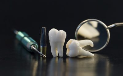 La dent : composition, forme et fonction