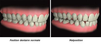malposition dentaire image double