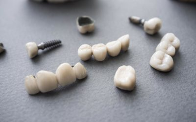 Types de prothèses d'implant