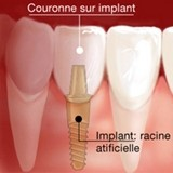 couronne implant dentaire