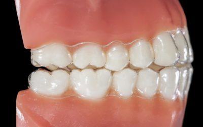 L'occlusion dentaire