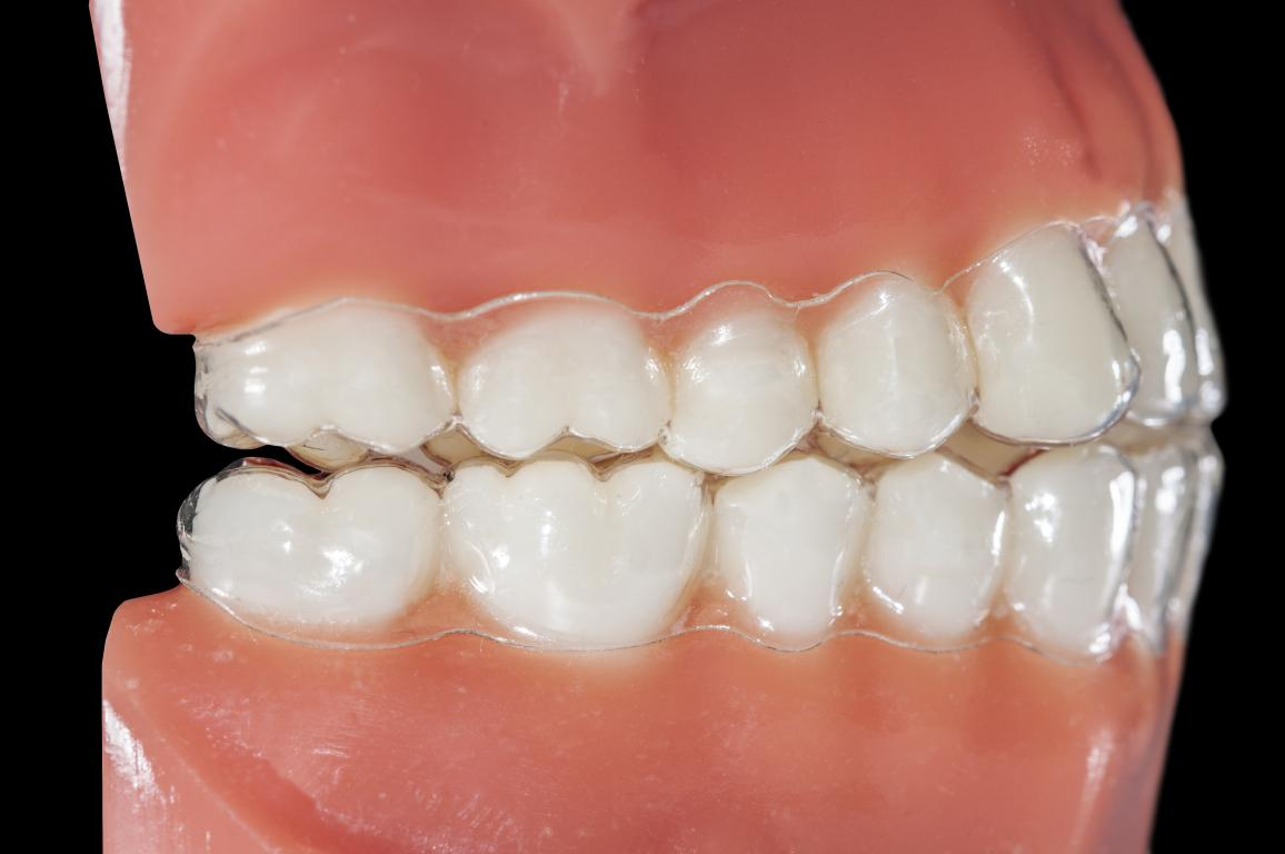 occlusion dentaire et appareil orthodontique invisible