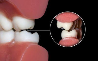 Malocclusions dentaires et traitements orthodontiques
