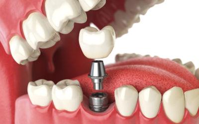 Implant dentaire : avant la chirurgie