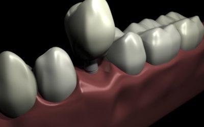 Greffes osseuses pré-implantaires