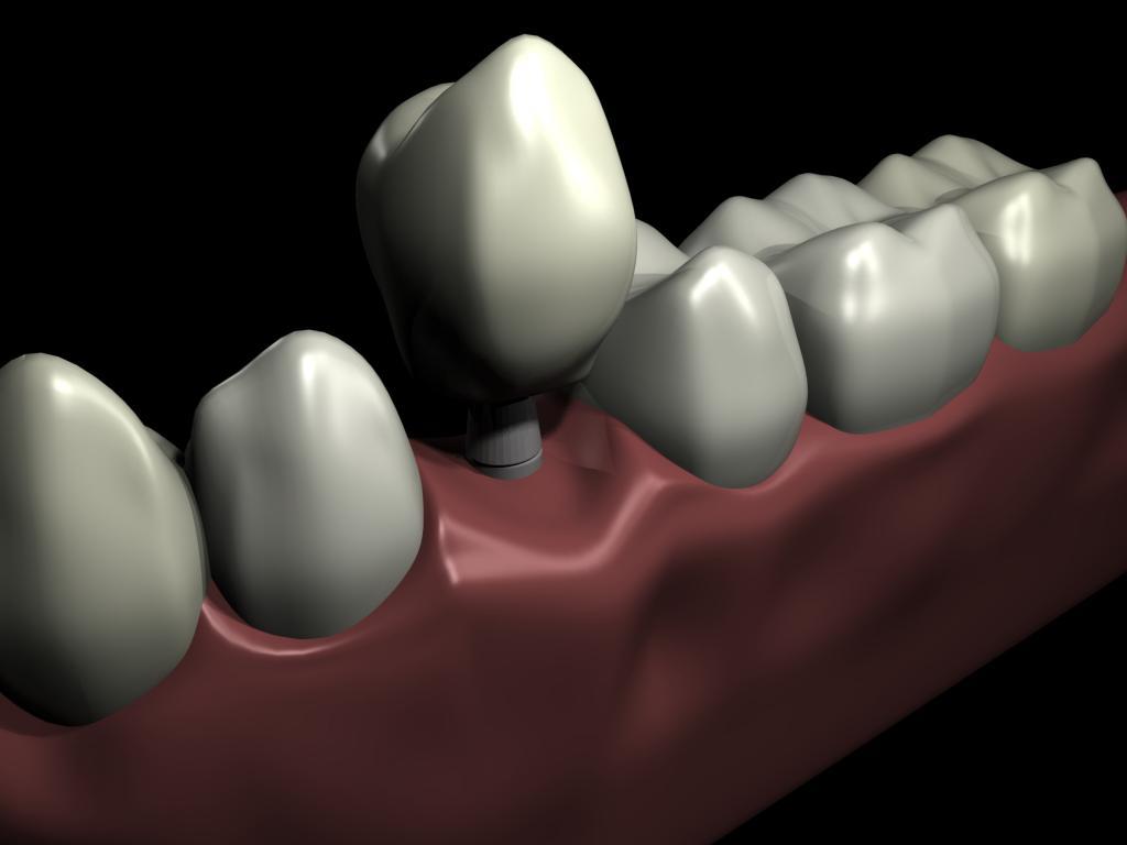 implant dent nice