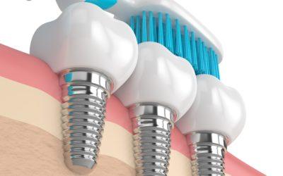 Comment entretenir ses couronnes sur implants ?