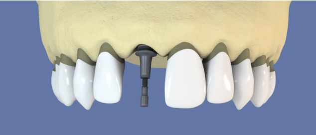 ortho et implant dentaire