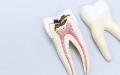 Le traitement endodontique sous microscope