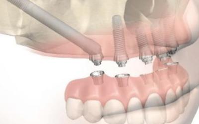 Implant sans greffe osseuse