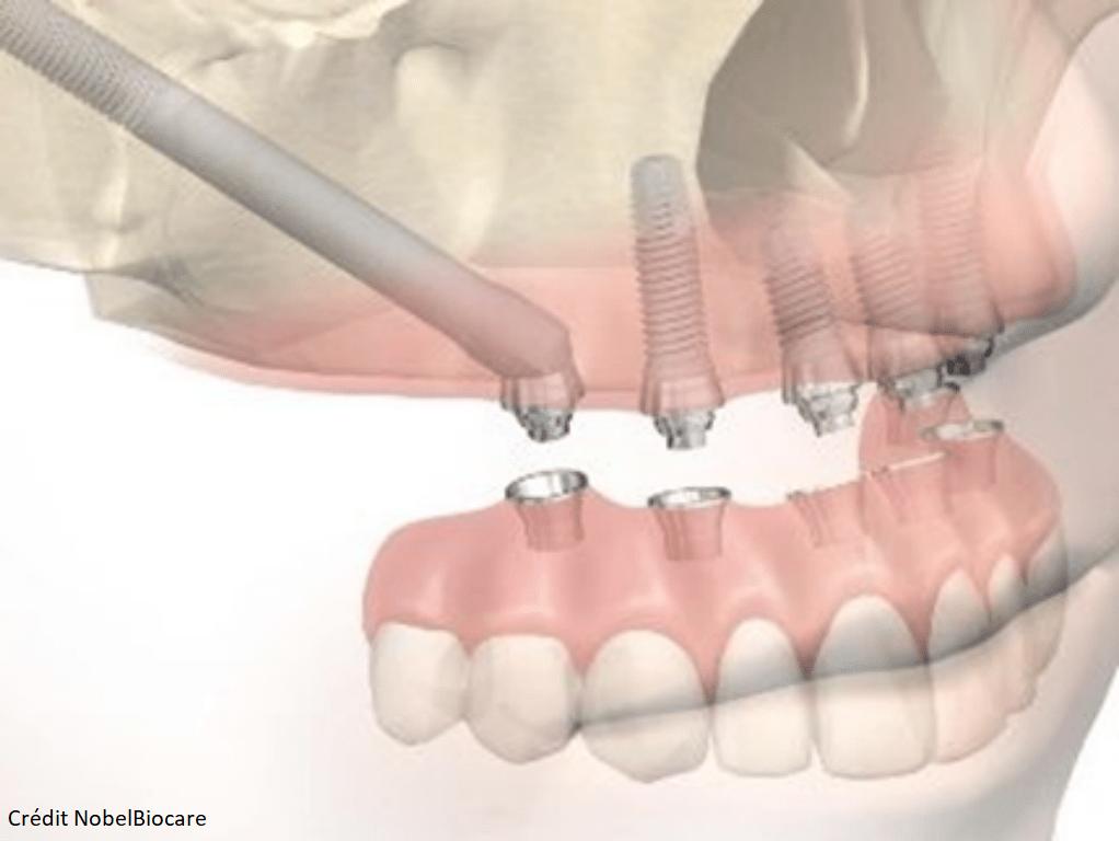 implant sans greffe osseuse _ zygomatiques