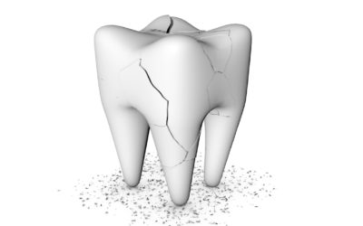 La mylolyse : usure de la dent