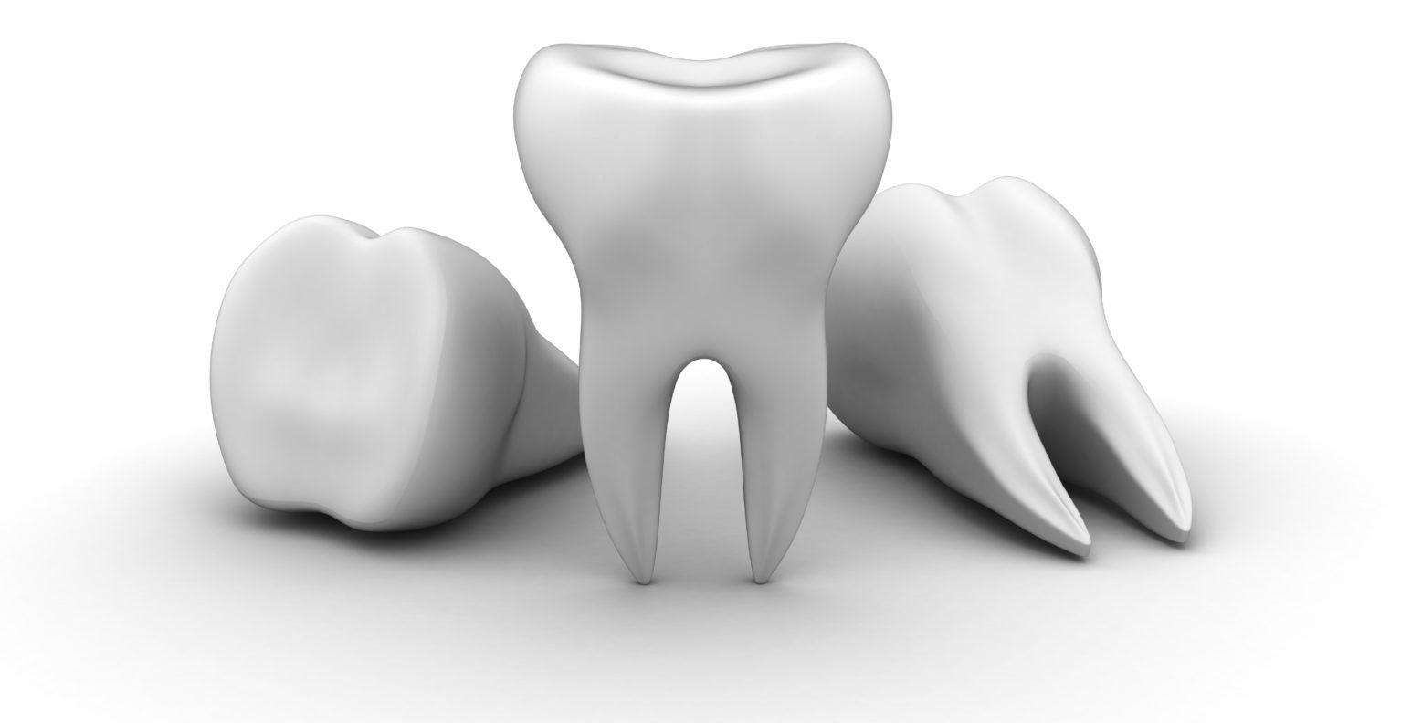 dent_manquante_dentiste_nice