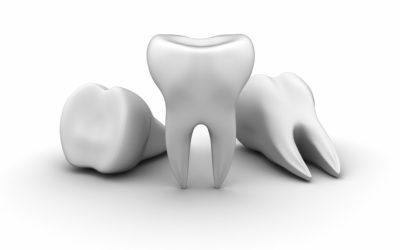Pourquoi remplacer une dent manquante ?