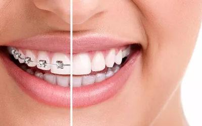 Qu'est-ce que l'Orthodontie ?